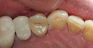 A tooth colored filling of a cavity