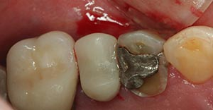 Amalgam filling of a cavity